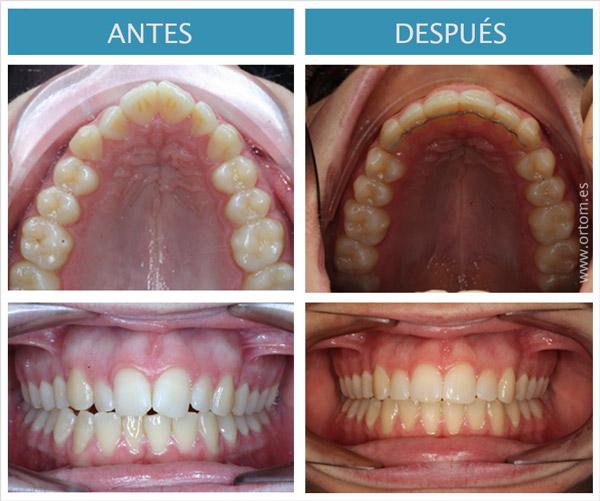 ortodoncia incognito clase I