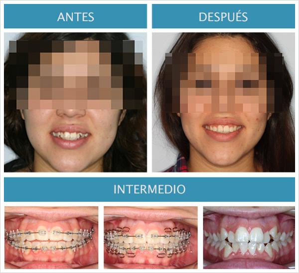 ortodoncia multiloops