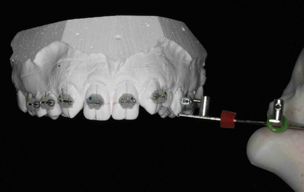 Cementado indirecto de brackets