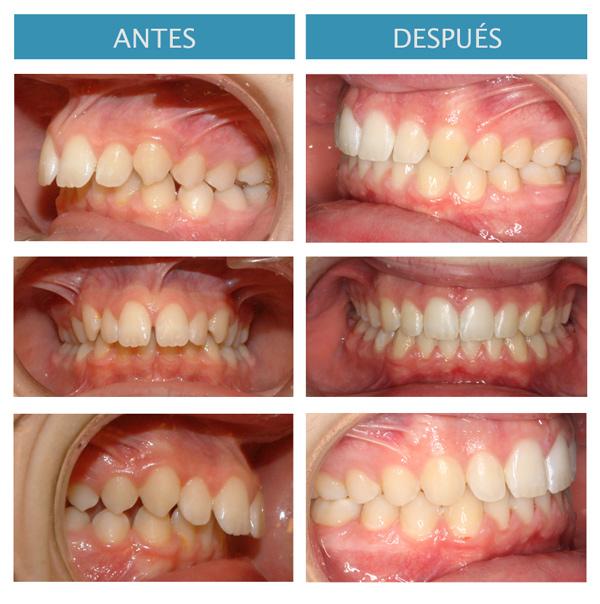correcion-clase-III-dentaria