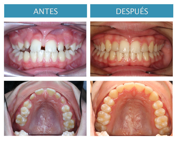 Frenillo labial superior hipertrófico