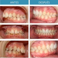 imagen de clase-III dentaria