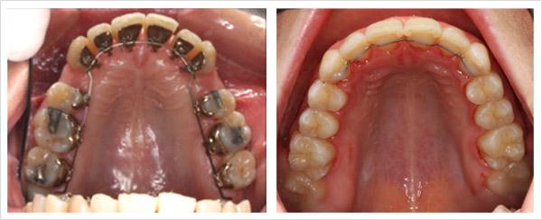ortodoncia invisible lingual