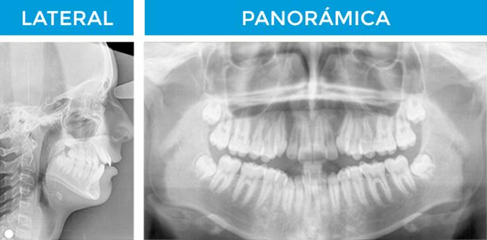 radiografias de ortodoncia en ortom
