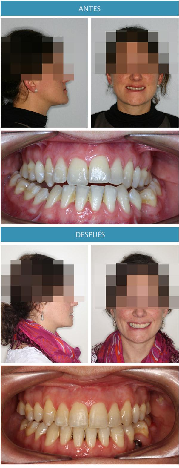 foto de cambios faciales en ortodoncia