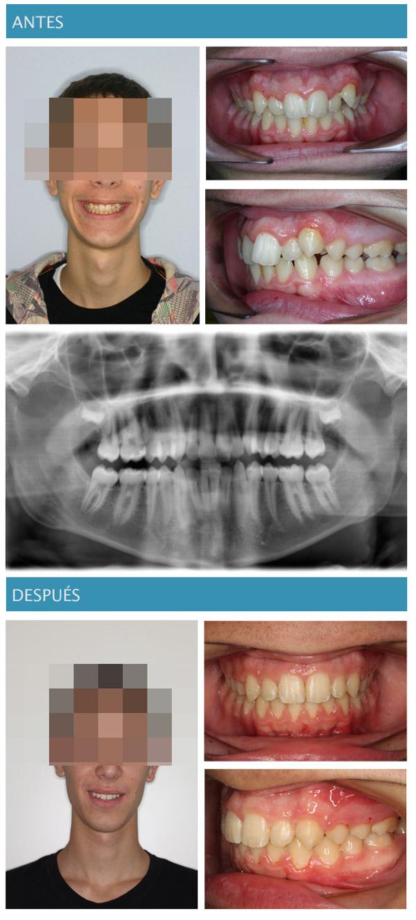 imagen de extracción de segundos molares