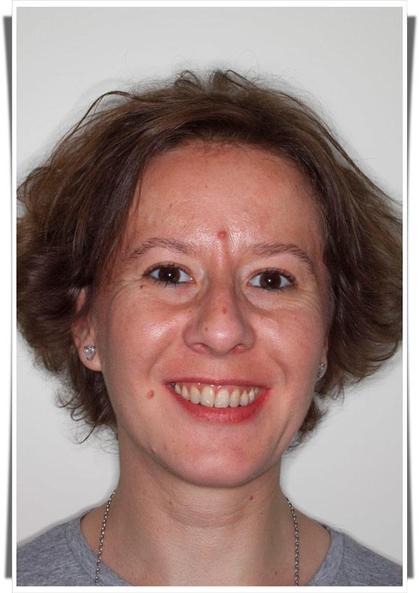 Testimonio de ortodoncia de Olga