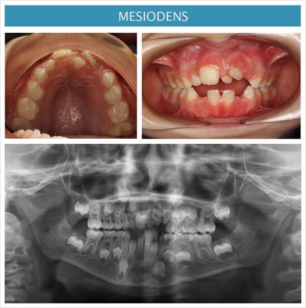 imagen de ortodoncia: mesiodens