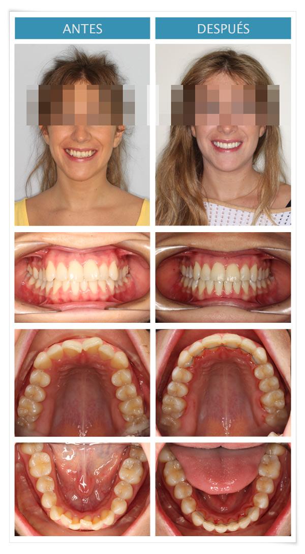 caso de ortodoncia incognito: apiñamiento moderado