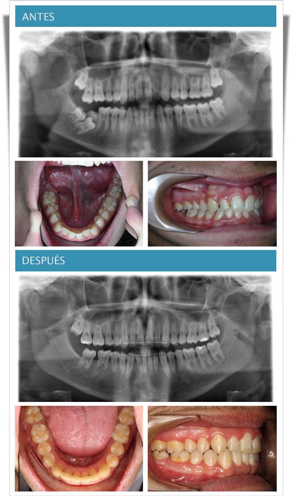 molar inferior incluido resuelto con sistema damon