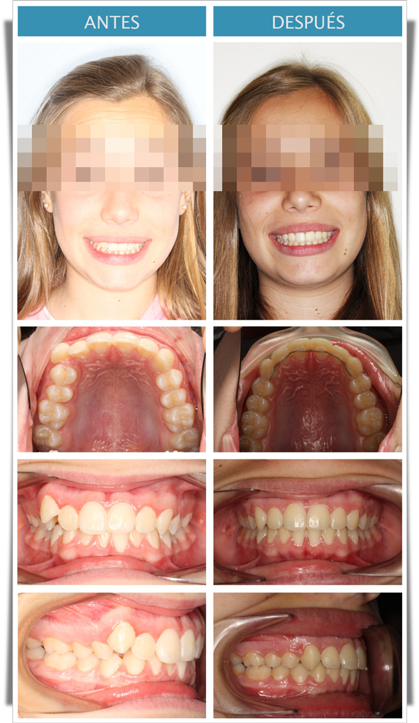 clase II dentaria