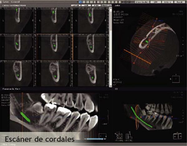 radiografia intraoral cordales