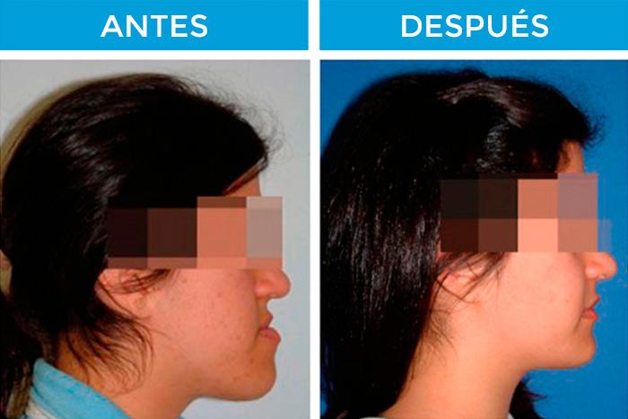 ortodoncia y cirugía: cirugia ortognatica