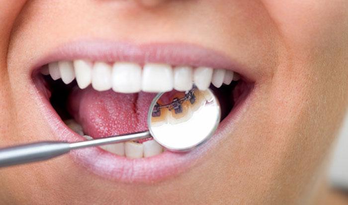 elegir ortodoncia