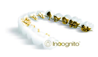 ortodoncia incognito