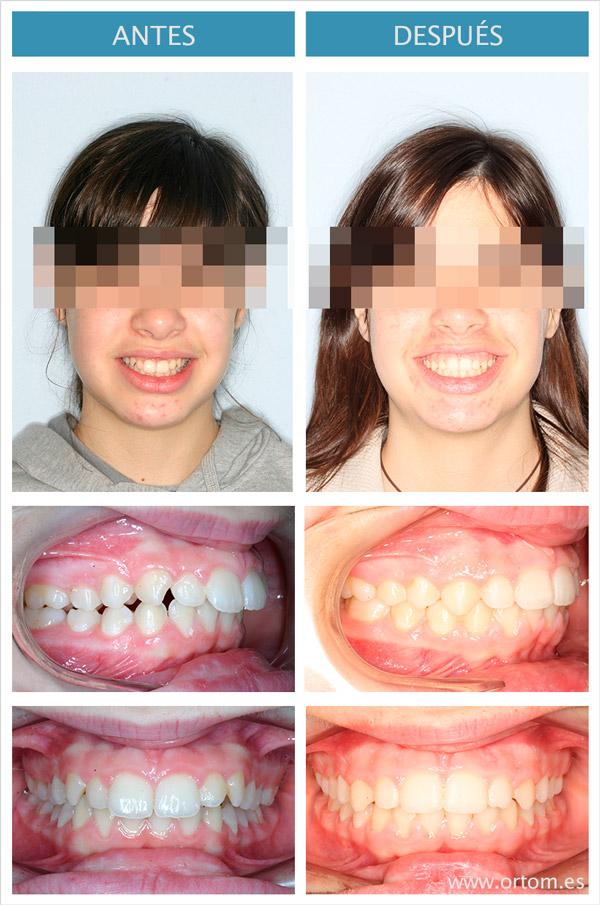 ortodoncia clase II unilateral