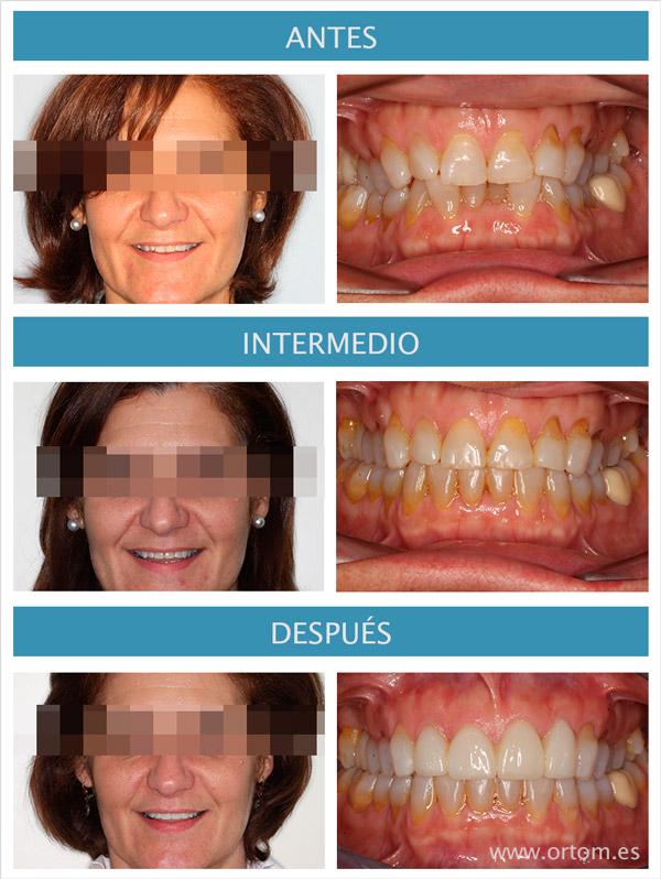 ortodoncia lingual incognito y carillas