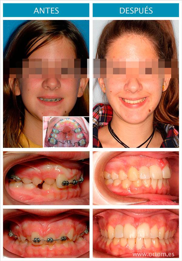 Ortodoncia agenesia de incisivo lateral superior