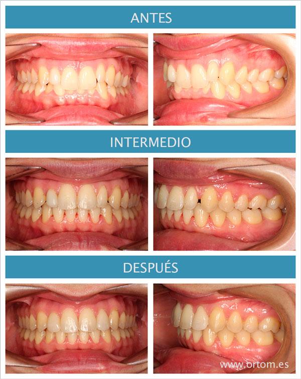 Discrepancia de bolton. Ortodoncia en Madrid