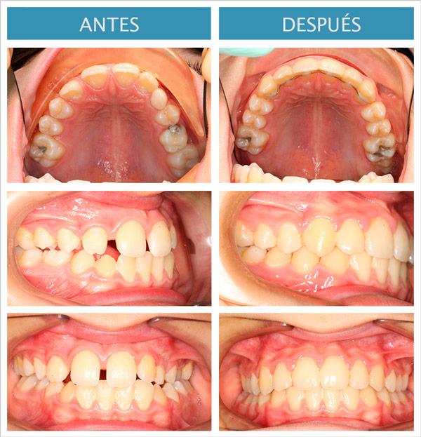 ortodoncia damon: erupción bloqueada de canino
