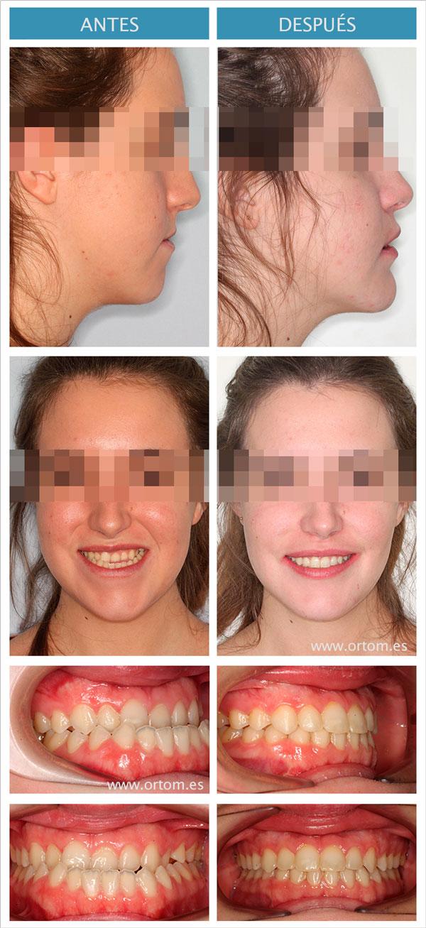 Ortodoncia y cirugia ortognática clase III