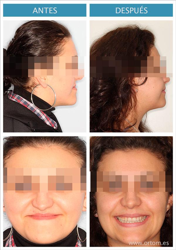 cambios despues de ortodoncia