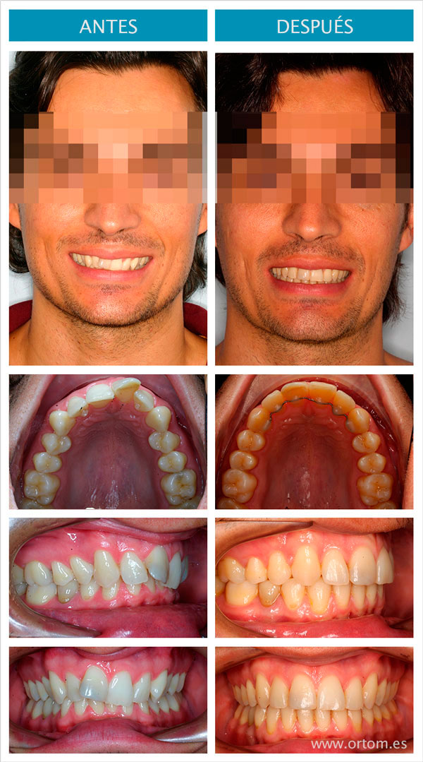 invisalign como alternativa a brackets