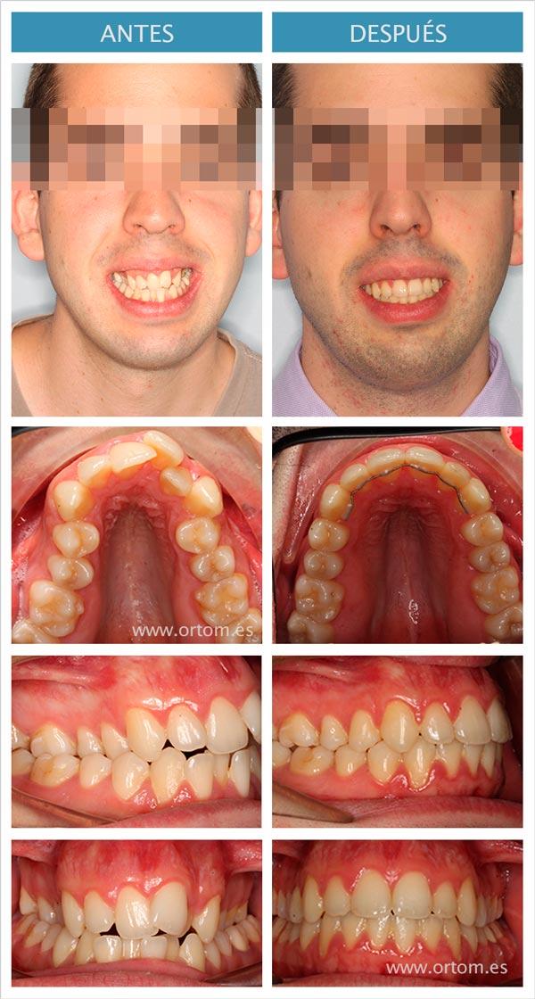 ortodoncia para mordida cruzada bilateral