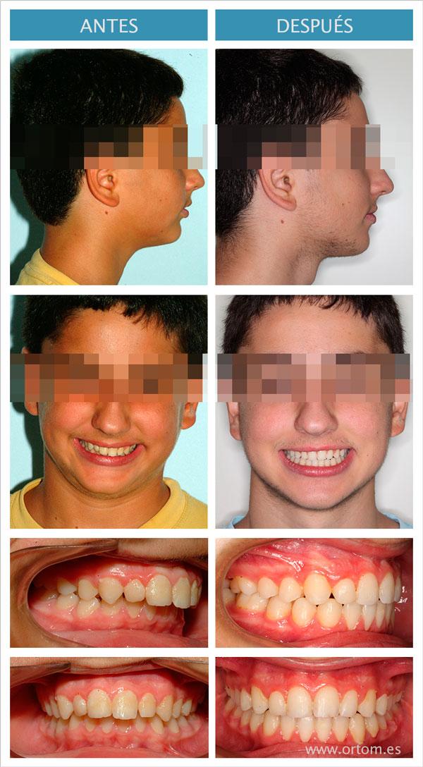 ortodoncia con forsus