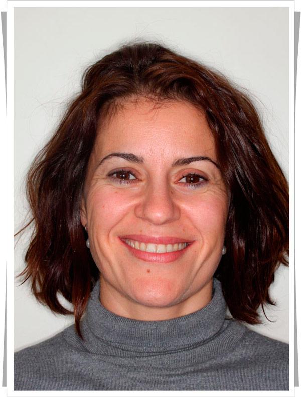 testimonio de ortodoncia brackets zafiro