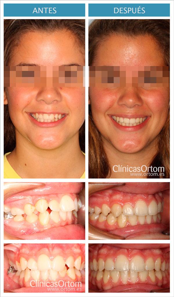 ortodoncia para clase II con elasticos