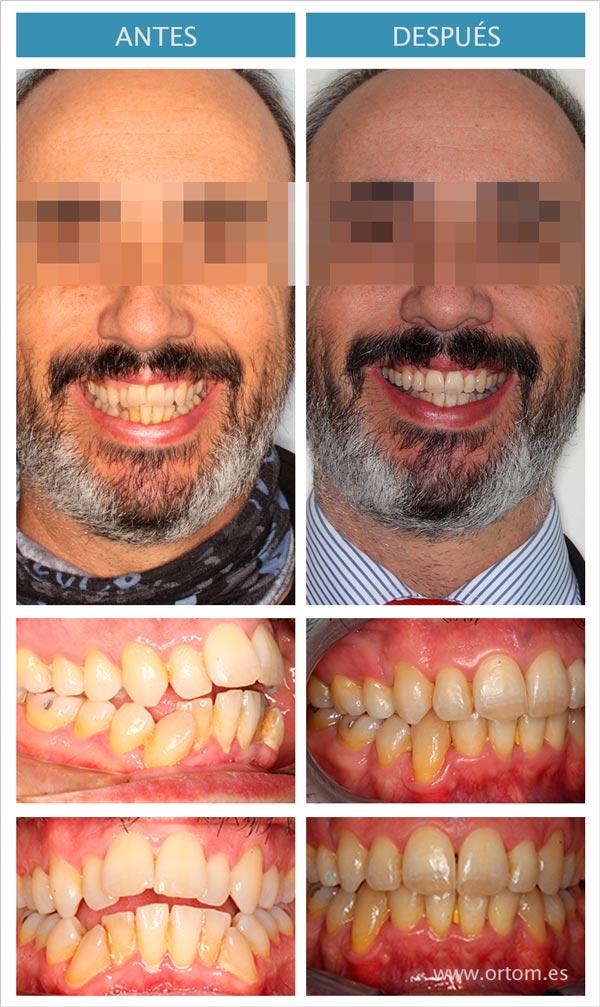 ortodoncia con extraccion de premolares