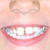 caso de ortodoncia infantil clase 3