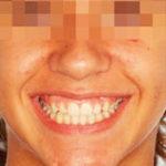 ortodoncia-infantil madrid sobremordida