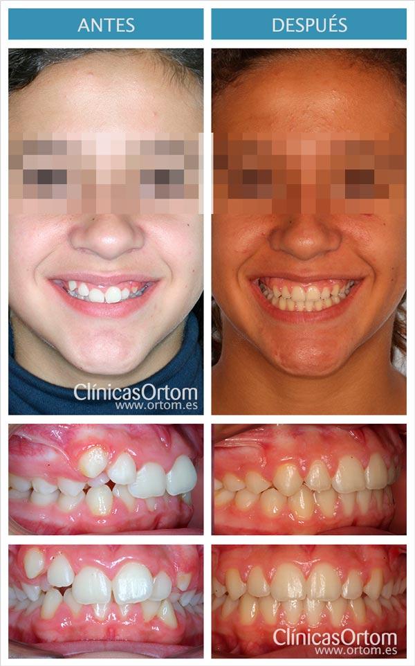 ortodoncia infantil sobremordida