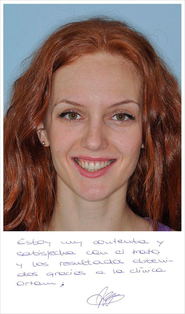 testimonio ortodoncia clase 1 y apiñamiento