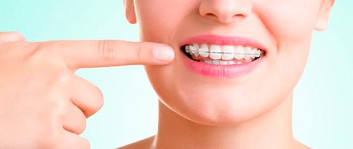 tratamientos de ortodoncia zafiro