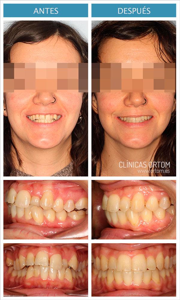 ortodoncia lingual mandíbula pequena