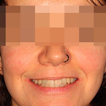 ortodoncia mandíbula pequeña