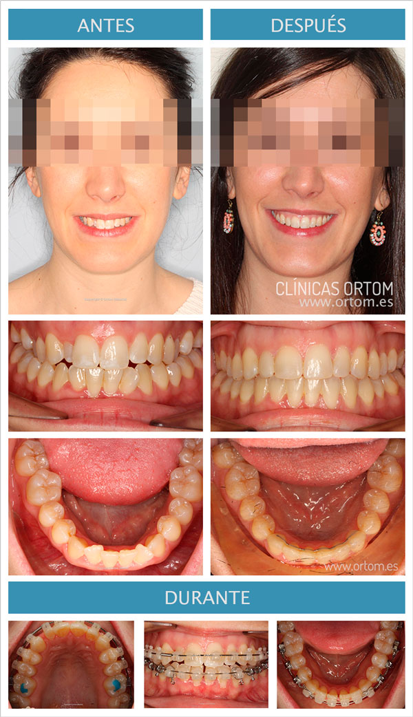ortodoncia brackets esteticos