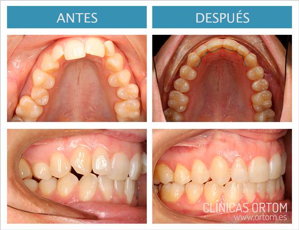 ortodoncia damon q