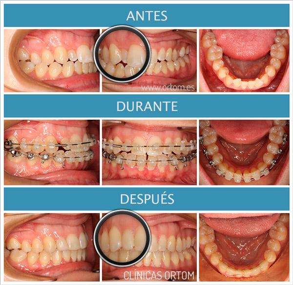 ortodoncia incisivos pequeños