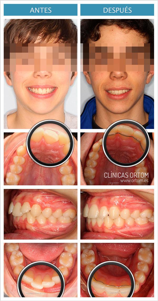 ortodoncia dientes descolocados