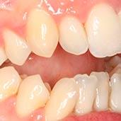 caso ortodoncia sato