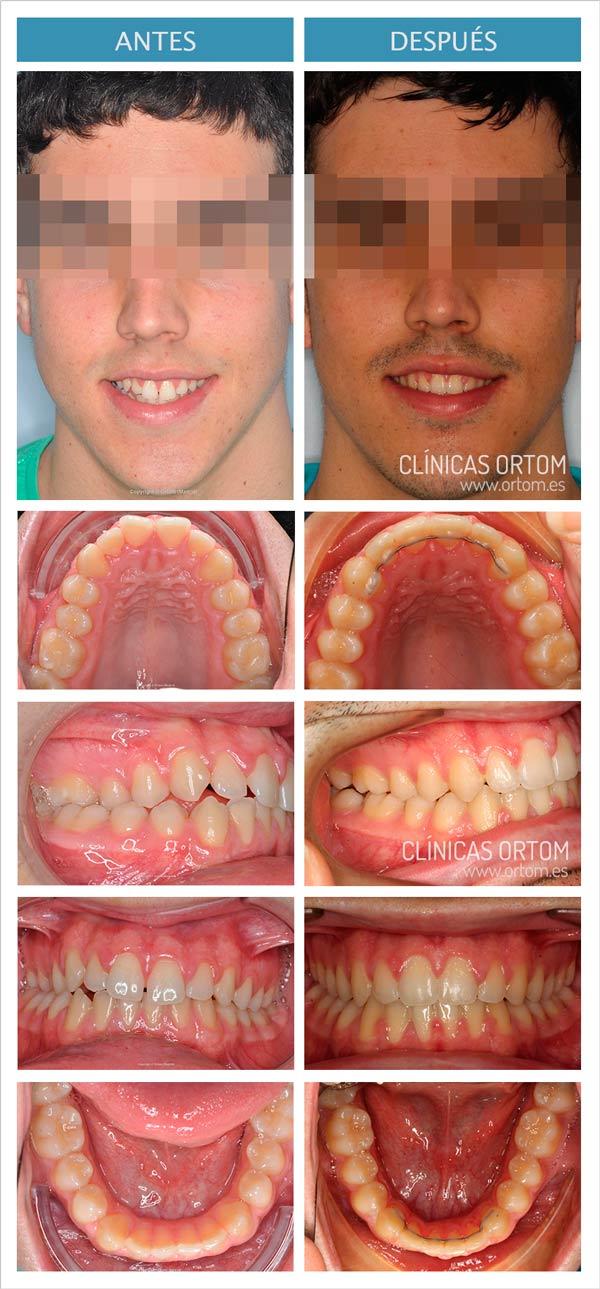 ortodoncia damon para espacio entre dientes