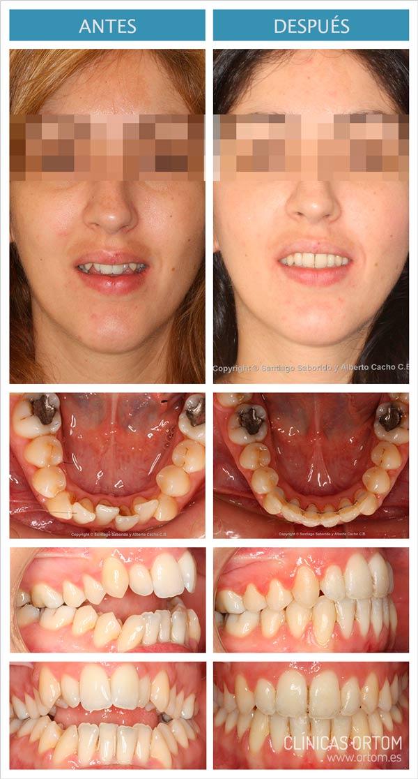 caso ortodoncia sato Madrid