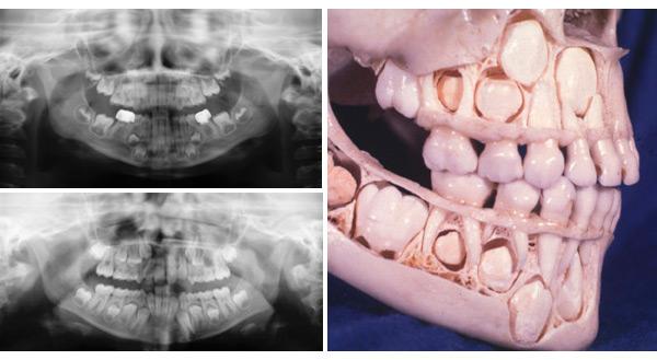 dientes de leche en adultos