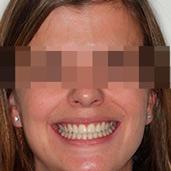 caso estética facial multidisciplinar