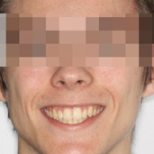 caso ortodoncia terapia miofuncional