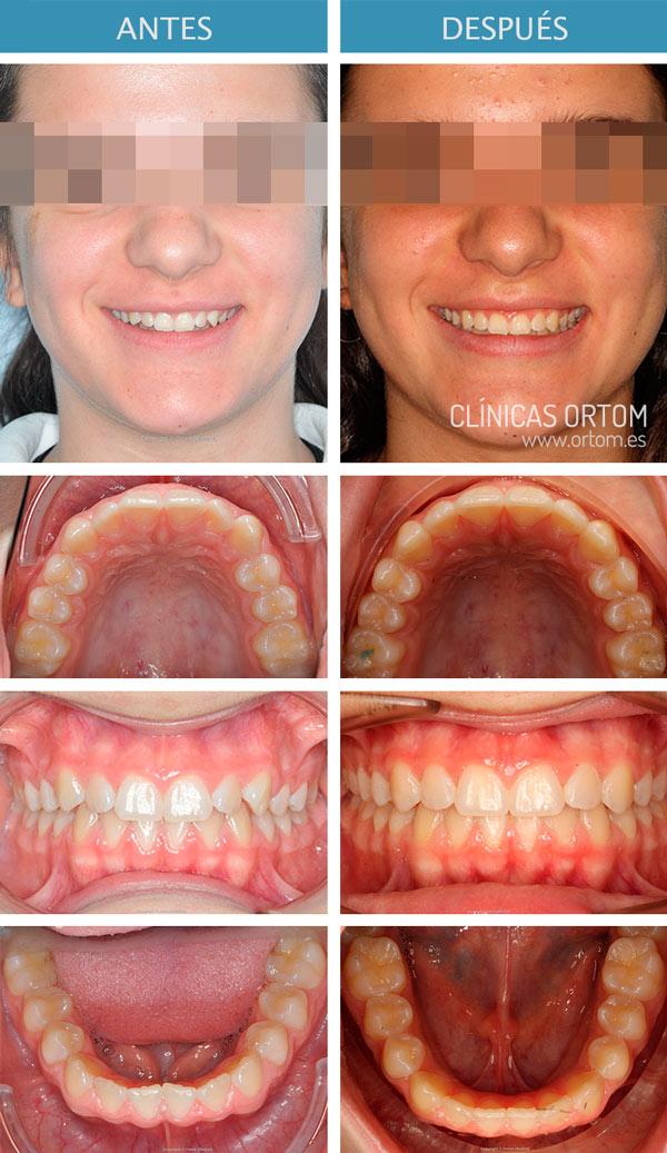 mejorar la inclinación de los dientes